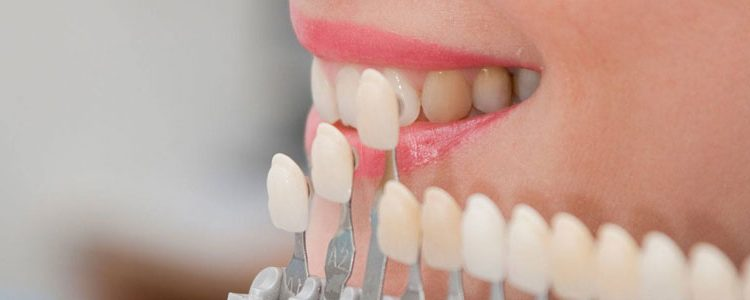 checking for correct porcelain Veneers