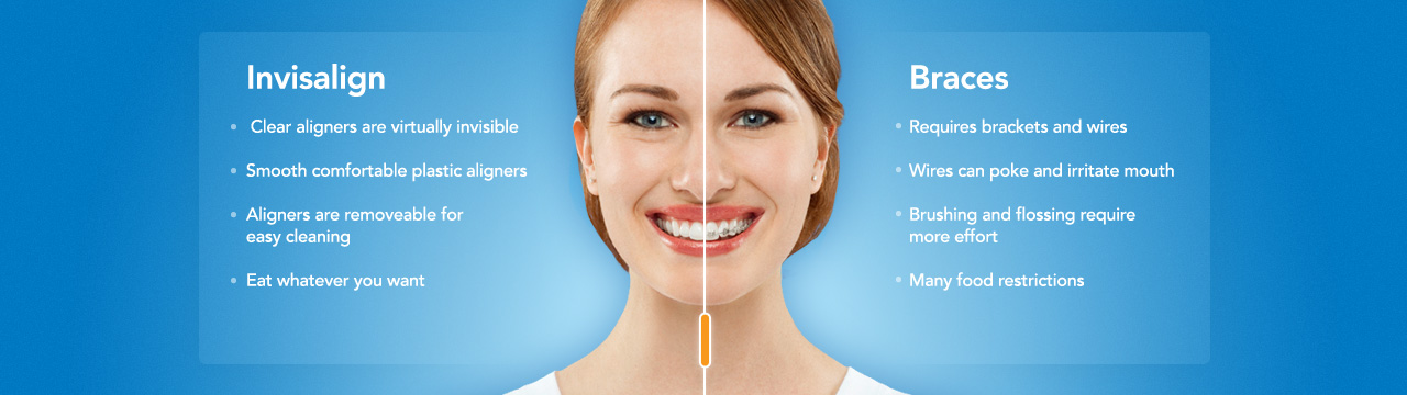 invialign-vs-braces