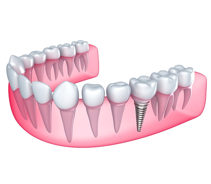 Dental-Implants-new